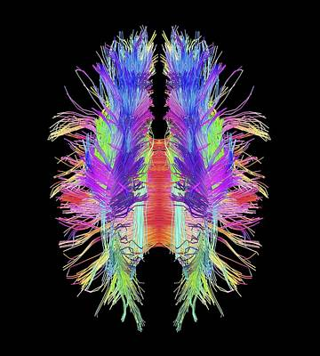 White Matter Fibres And Brain, Artwork Print by Science Photo Library