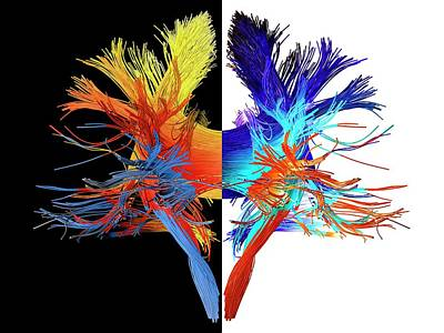 Human Brain Photograph - White Matter Fibres Of The Human Brain by Alfred Pasieka