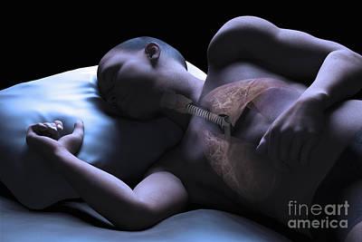 Male Organ Photograph - Sleep Apnea by Science Picture Co