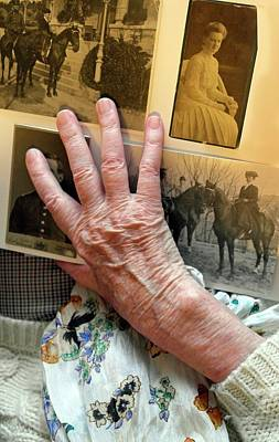 Alzheimers Photograph - Alzheimer's Patient by Tony Craddock