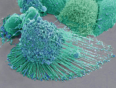 Photograph - Apoptotic Hela Cell, Sem by Science Source