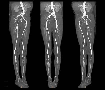 Arterial Aneurysm Print by Zephyr