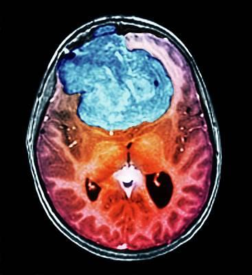 Scan Photograph - Benign Brain Tumour by Zephyr