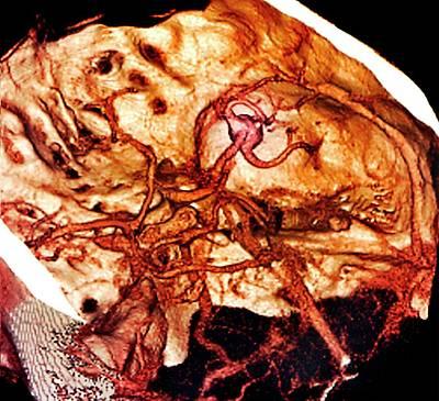 Scan Photograph - Brain Haemorrhage by Zephyr