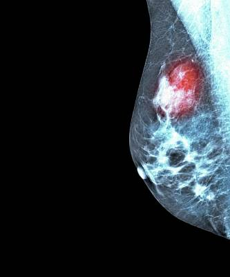 Cancer Photograph - Breast Cancer by Dr P. Marazzi