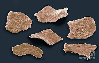 Cheek Squamous Cells, Sem Print by Steve Gschmeissner