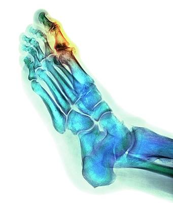 Degenerative Foot Deformation Print by Dr P. Marazzi