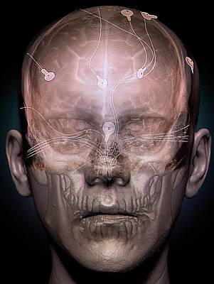 Electroencephalography Print by Zephyr