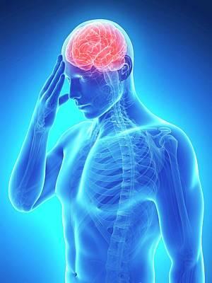 Human Brain Photograph - Headache by Sebastian Kaulitzki