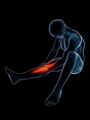 Inflammation Photograph - Human Knee Pain by Sebastian Kaulitzki