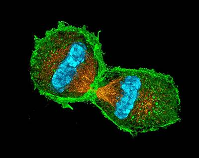 Mitotic Spindle Photograph - Mitosis by Dr Lothar Schermelleh