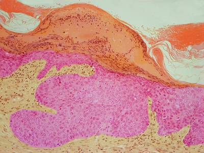 Skin Cancer Print by Steve Gschmeissner