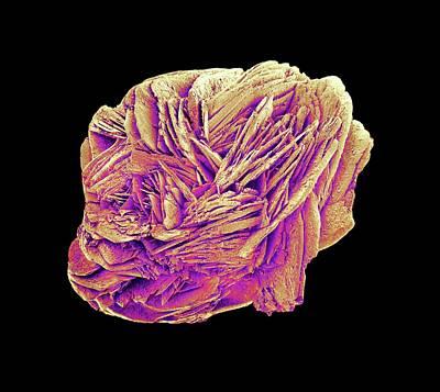Crystalline Photograph - Kidney Stone by Susumu Nishinaga