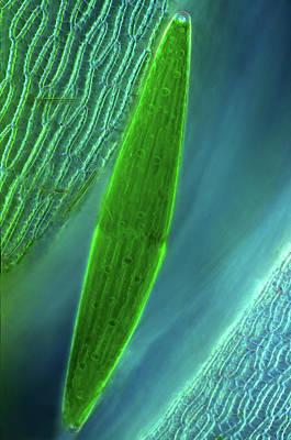 Algal Photograph - Desmid On Sphagnum Moss by Marek Mis