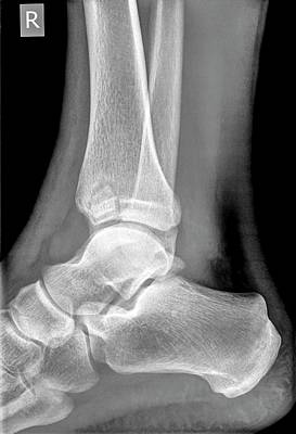 Radiograph Photograph - Ankle X-ray by Photostock-israel
