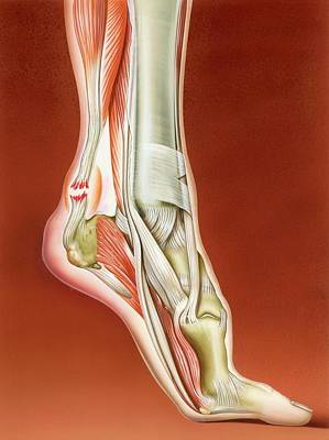 Tissue Art Photograph - Achilles Tendon Rupture by John Bavosi