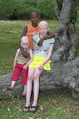 Albino Siblings With Their Black Brother Print by Tony Camacho