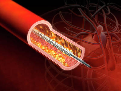 Angioplasty Print by Harvinder Singh