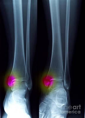 Ankle Fracture Print by Scott Camazine