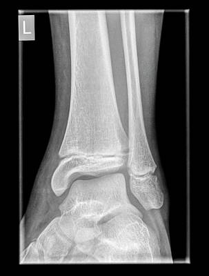 Ankle X-ray Print by Photostock-israel