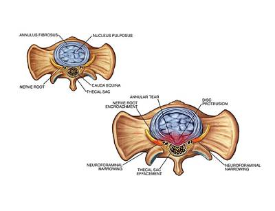 Annular Tear Of Intervertebral Disc Print by John T. Alesi
