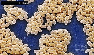 Anthrax Spores Print by Scott Camazine