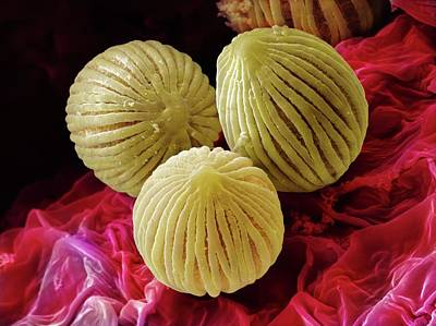 Bisexual Photograph - Anthurium Sp. Pollen (sem) by Power And Syred