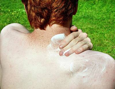 Freckles Photograph - Applying Suntan Lotion To Pale Skin by Cordelia Molloy