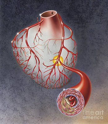 Arteries On Heart Showing Print by TriFocal Communications