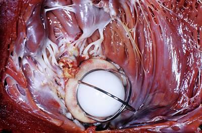 Interior Still Life Photograph - Artificial Heart Valve by Pr. Ch. Cabrol - Cnri