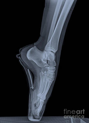 Human Limb Photograph - Ballet Dancer X-ray 2 by Guy Viner