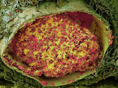 Hematology Photograph - Blood Clot In The Lung by Microscopy Core Facility, Vib Gent