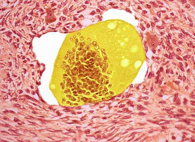 Bone Tumour Print by Steve Gschmeissner