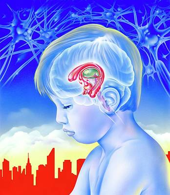 Brain And Childhood Depression Print by John Bavosi