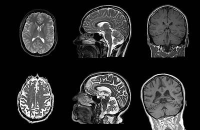 Mri Photograph - Brain Changes With Ageing by Dr P. Marazzi