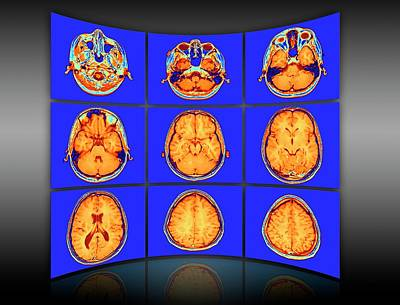 Brain Mri Scans Display Wall Print by Alfred Pasieka