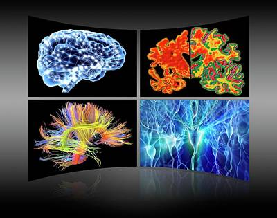 Brain Research Display Wall Print by Alfred Pasieka