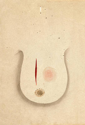 Breast Cancer Surgery Print by National Library Of Medicine