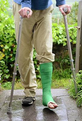 Crutch Photograph - Broken Ankle And Crutches by Cordelia Molloy