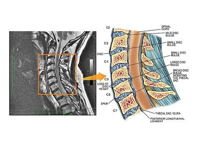 Bulging Discs In The Cervical Spine Print by John T. Alesi