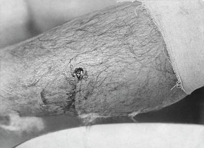 Bullet Entry Wound Print by Library Of Congress