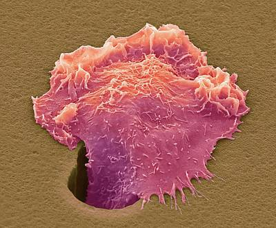 Cancer Cell Migrating Print by Steve Gschmeissner