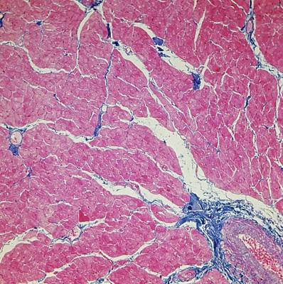 Cardiac Muscle Print by Overseas/collection Cnri/spl