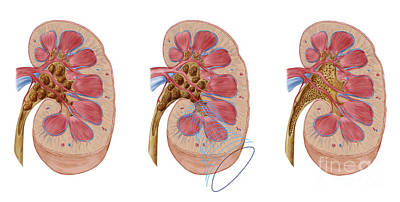 Comparison Of Different Sized Kidney Print by Stocktrek Images
