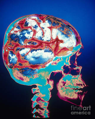 Conceptual Skull With Blue Sky Brain Print by Bill Longcore