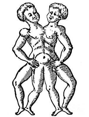 Conjoined Twins, 16th Century Print by Science Source