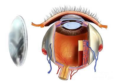 Contact Lens And Eye Anatomy, Artwork Print by Bo Veisland