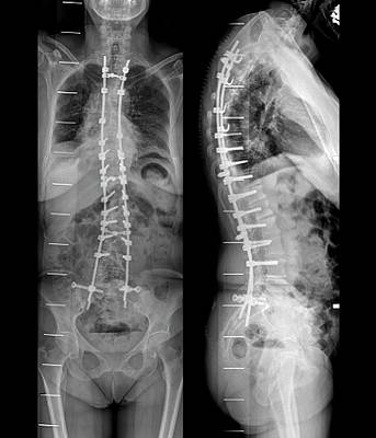 Curvature Of The Spine After Surgery Print by Zephyr