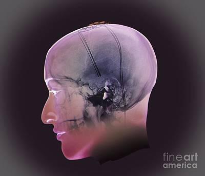 Deep Brain Stimulation, X-ray Print by Zephyr
