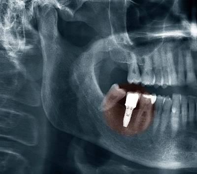 Dental Implant Print by Zephyr